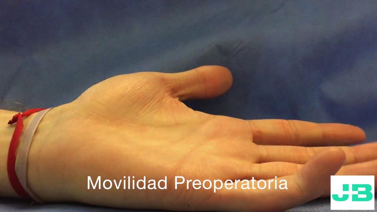 Secuela postraumática articular del dedo meñique - YouTube