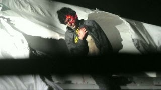 Chilling photos of Boston bombing suspect when captured thumbnail