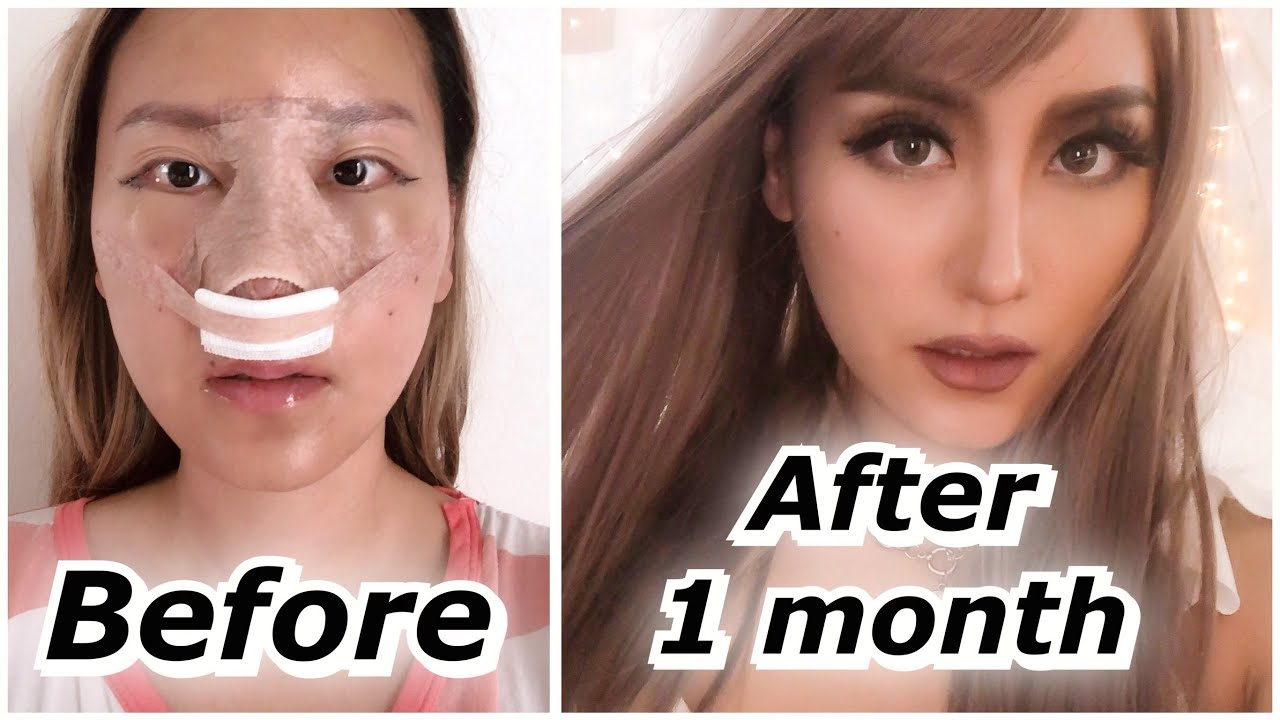 Rhinoplasty 1 Month Update Before After Id Hospital Surgery Part 2 Youtube