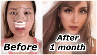 Rhinoplasty 1 month update BEFORE & AFTER | ID Hospital