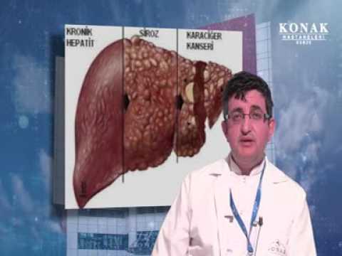 Hepatit Nedir ?