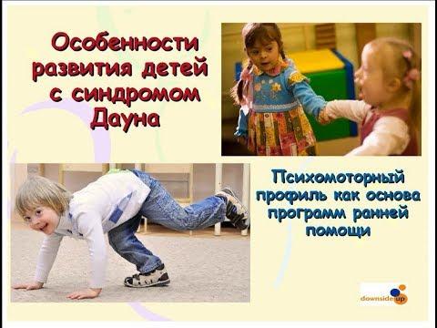 2017.11.21 Особенности развития детей с синдромом Дауна. Фенотип.