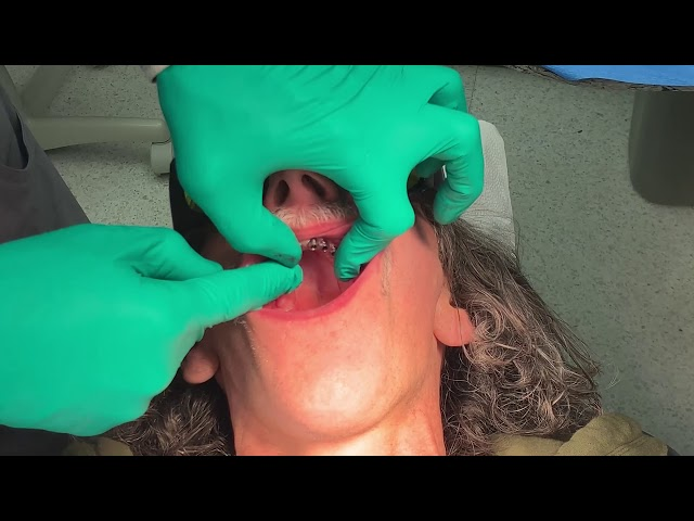 Monday Morning Minute: Thin Ridge Implant Placement
