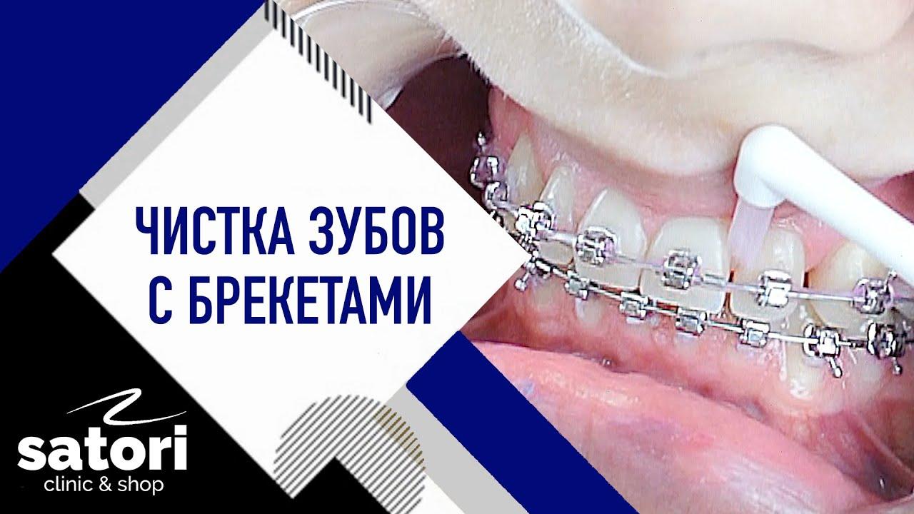 Чистка зубов с брекетами. Чистите с нами каждый день.