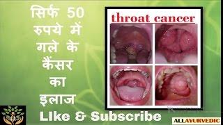 सिर्फ 50 रुपये में गले के कैंसर का इलाज | Throat Cancer Treatment in 50 Rs. | Health Care Tips