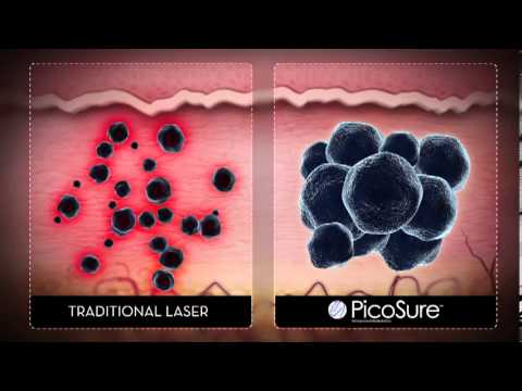 Laser Tattoo Removal - Cynosure Picosure