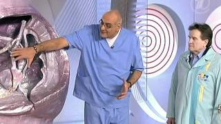 видео Простатит и аденома простаты