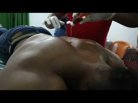 Sangram Chougule Cupping Therapy