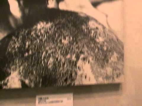 Burned by the Hiroshima Atomic bomb