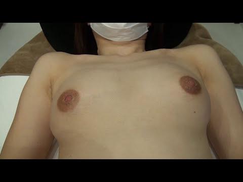 高須クリニック  豊胸手術後6カ月の経過  寝て横になった状態 大胸筋下にシリコンプロテーゼ125cc を入れました  美容整形外科動画