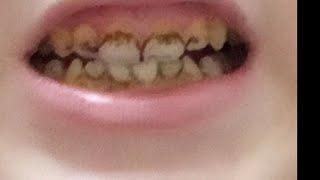 Diş lekesi temizleme uygulamalı