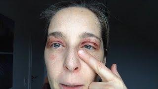 Augenlidstraffung ohne OP – Tag 3 nach der Lidstraffung Empfehlung
