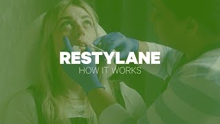 Restylane: How It Works