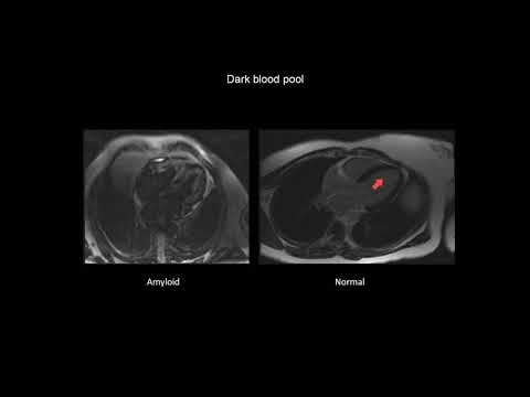 How to assess cardiac amyloidosis with CMR (cardiac magnetic resonance imaging)