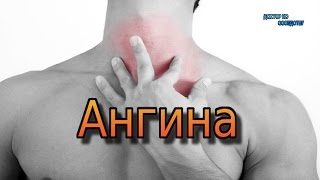 видео Боль в горле при глотании без температуры: возможные причины и способы лечения