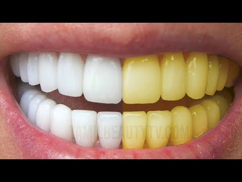 Teeth Whitening How To Whiten Your Yellow Teeth Naturally At