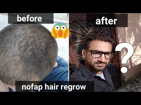Nofap hair loss