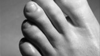 How To Heal White Spots On Nails