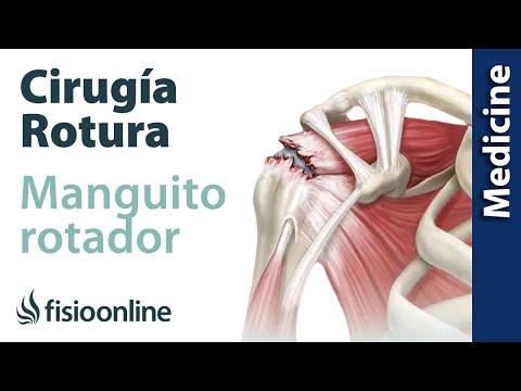 Tendinitis del manguito de los rotadores. | Fisioterapia Online