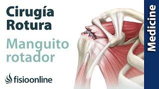 nuevo producto 4d731 ac648 Lesiones más frecuentes del Hombro | FisioOnline