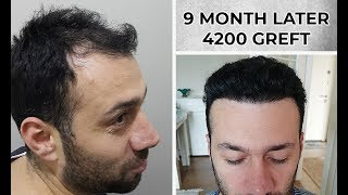 9 MONTH LATER | 4200 GREFT | FUE METHOD | SAPPHİRE