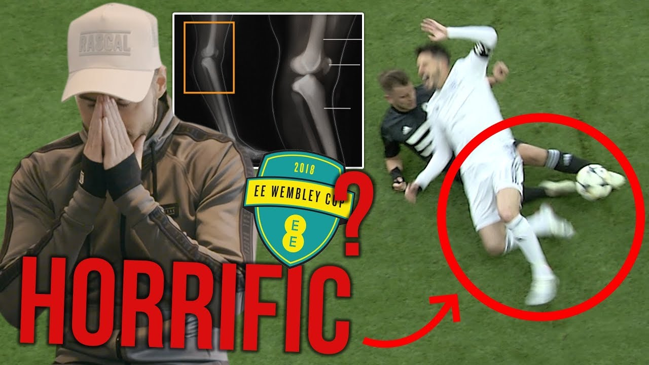 the-truth-behind-billy-s-horrific-injury