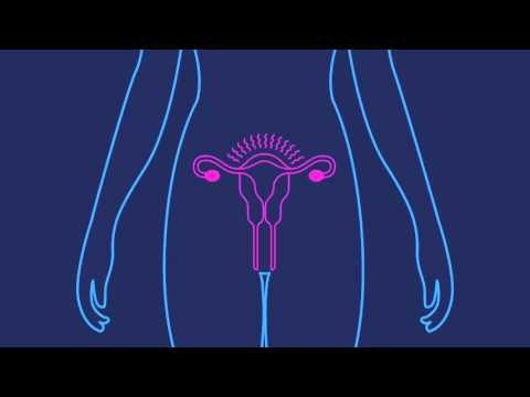 What is the Birth Control Ring? | Planned Parenthood Video
