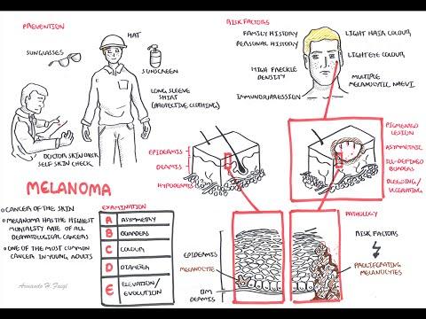 Melanoma - Overview (signs and symptoms, pathology, risk factors, treatment)