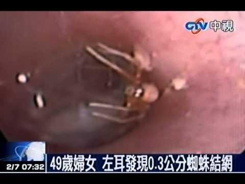49岁妇女 左耳发现0.3公分蜘蛛结网