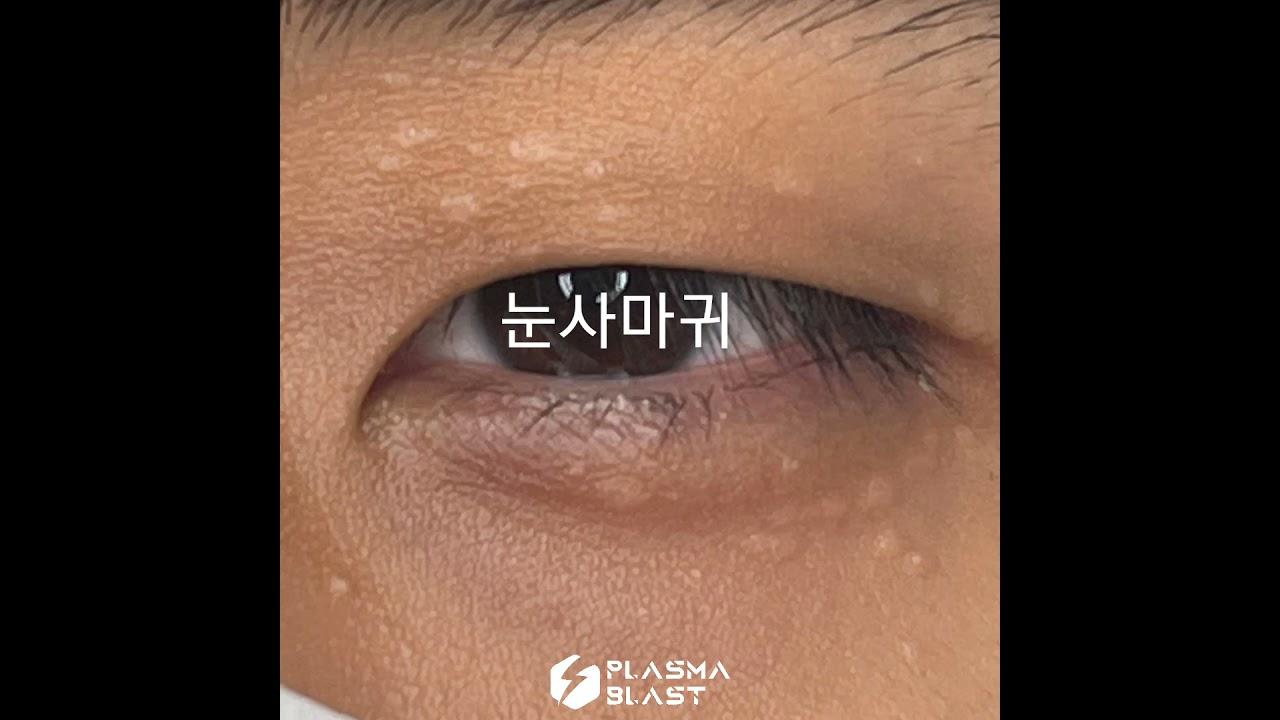 눈사마귀 비립종제거 콜드플라즈마 하는 영상이에요. 눈매가 시원해짐#fyp