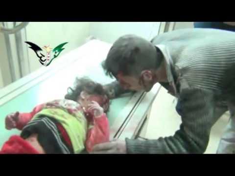 شام حماة كفرزيتا طفلة مصابة جراء القصف 15 1 تحذير قاسي