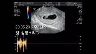 주수사진/임신/출산♡