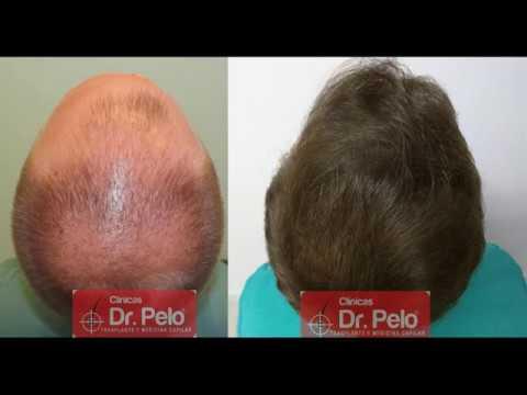 53c35cf964c46 Excelente trasplante capilar en Sevilla - Clinicas Dr Pelo - Dr. Afonso  Junior