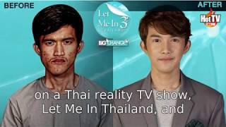Thai man extremely transforms after plastic surgeries on reality TV show