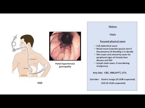 An Approach to GI Bleeding (Melena, Hematemesis, Hematochezia)