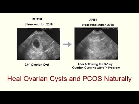 eliminating-ovarian-cysts-and-pcos-naturally