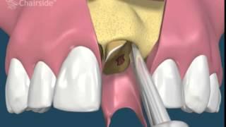 Стандартные съемные протезы, импланты.(Самые доступные цены на стоматологию в городе Сумы. Бесплатная консультация. +38 066 196 87 93 , http://www.your-brilliant-smile.c..., 2014-06-11T10:34:08.000Z)