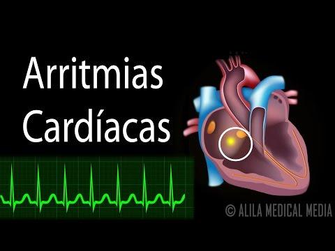 Arritmias Cardíacas, Animación. Alila Medical Media Español.