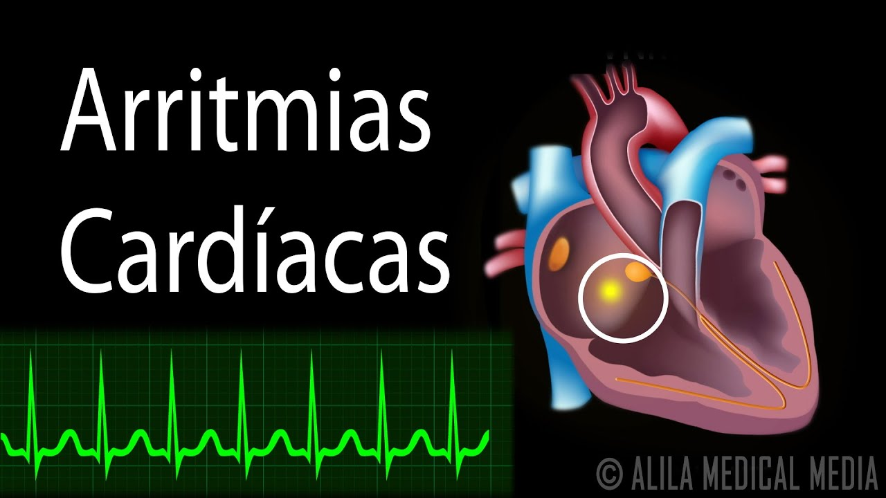 Arritmia Gif Gif Images Download: Arritmias Cardíacas, Animación. Alila Medical Media
