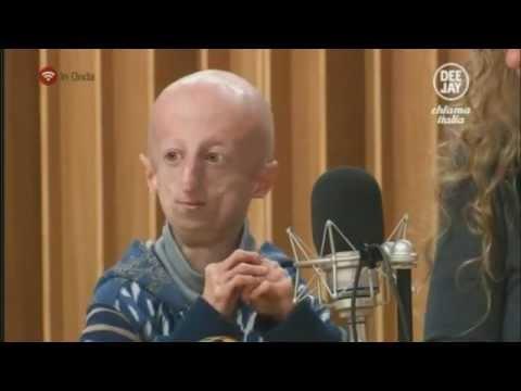 La Storia di Sammy Basso di 19 anni a Deejay Chiama Italia - DCI