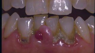 Causa enfermedad bacteria que periodontal la