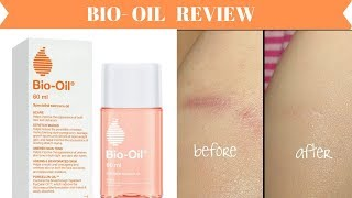 Bio Oil Product Review | Be You Deserve