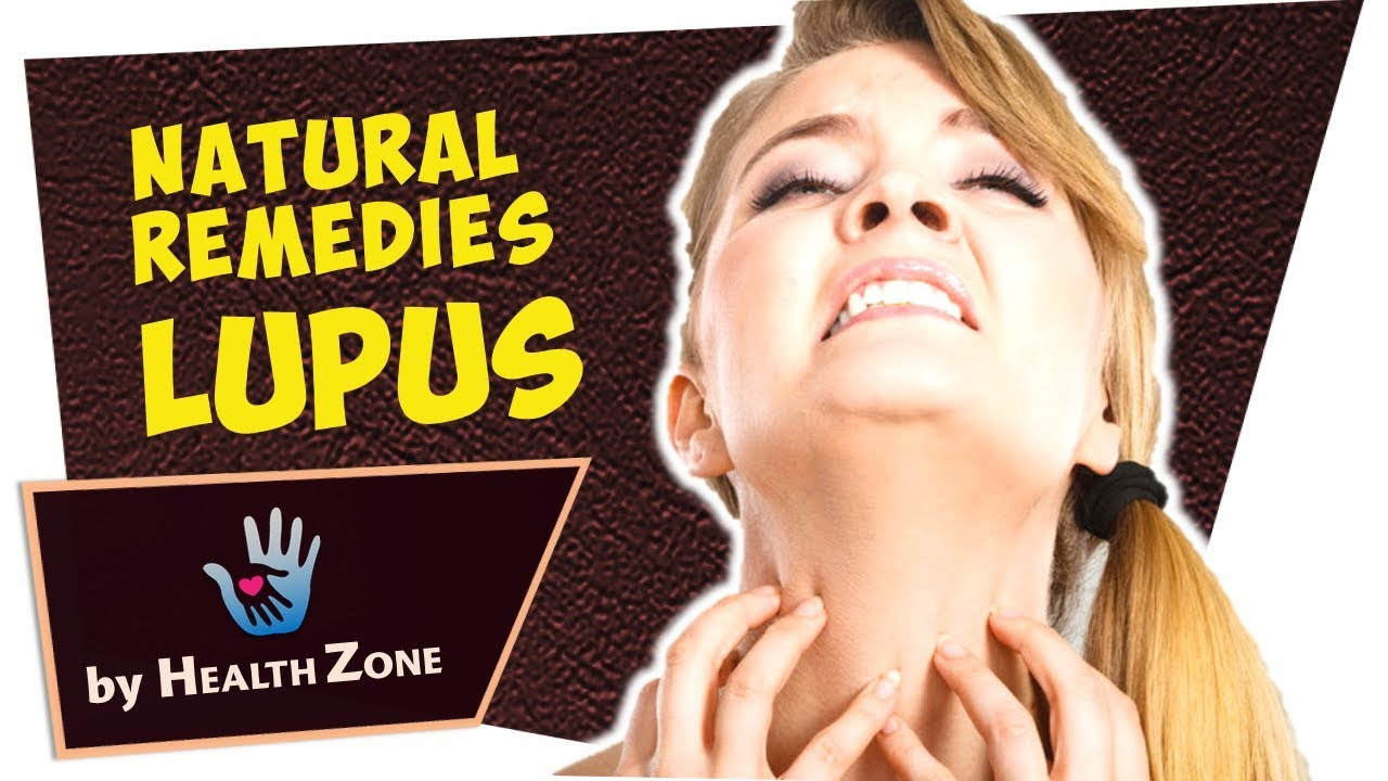 7 Natural Remedies For Lupus Youtube