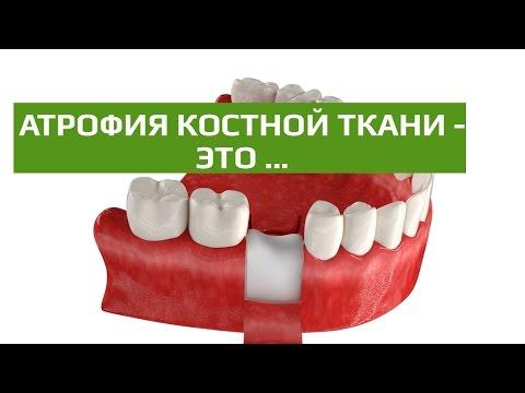 Через сколько можно есть после удаления зуба, что нельзя