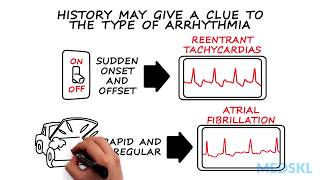 Palpitations: When being aware of heart beating could be a concern