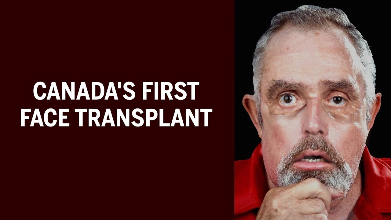 Canada's first face transplant | National Post