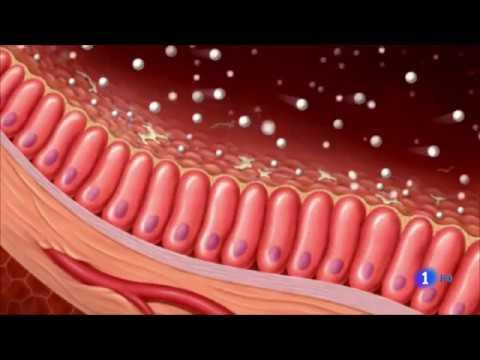 bacterias clostridium difficile sintomas de diabetes