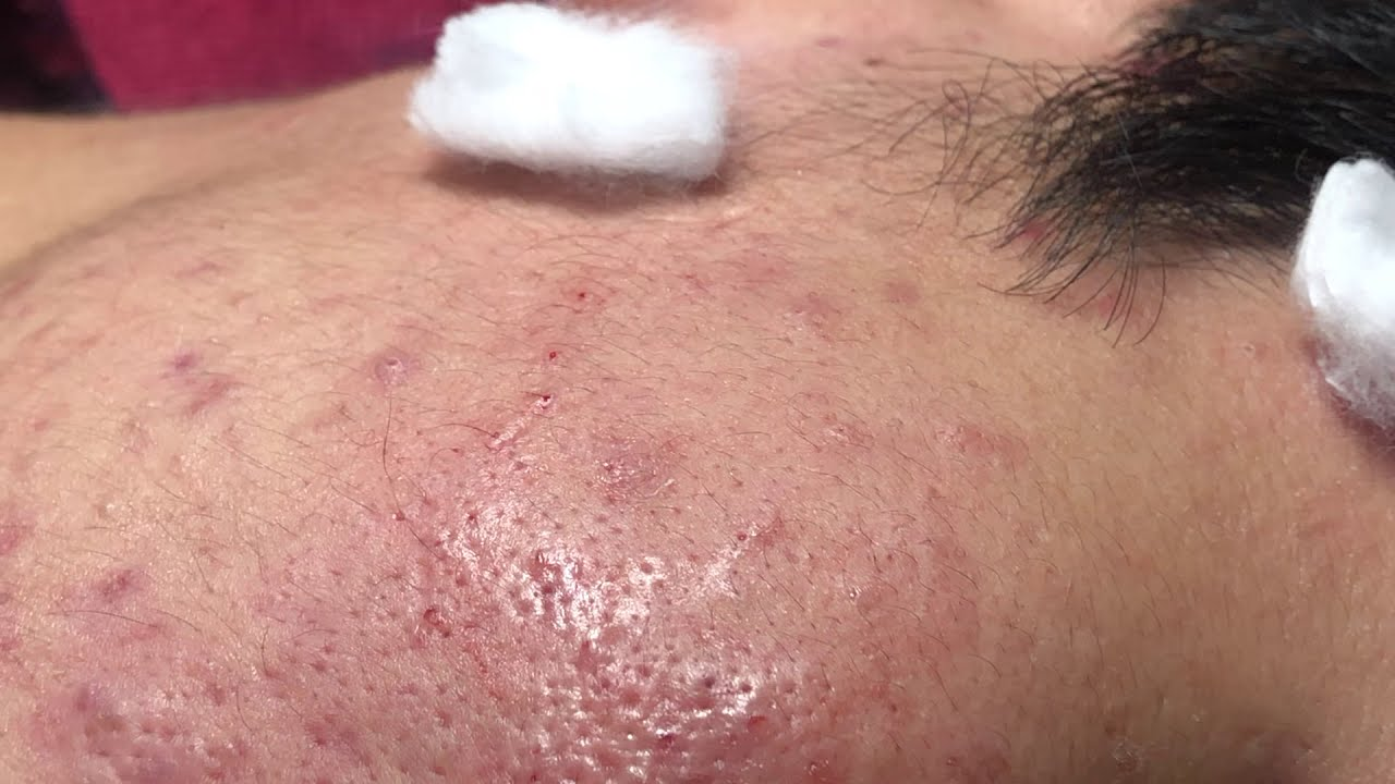 ACNE BY NGỌC - LONG TIME NO SEE