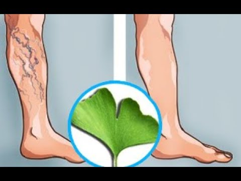 Poor Blood Circulation, Cold Legs and Hands Here is What You Can do