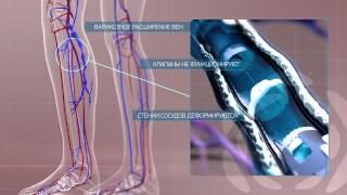 Варифорт - медицинское изделие при варикозе
